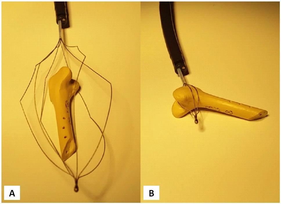 """La pince de type """"basket"""" permet d'entourer un corps étranger et de le ramener délicatement vers la sortie de l'œsophage"""