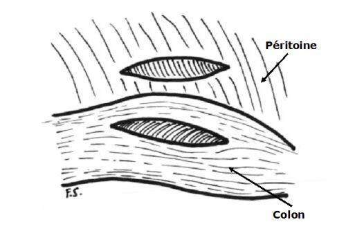 Réalisation de la colopexie
