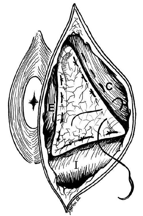 hernies perineales Page 12 Image 0001