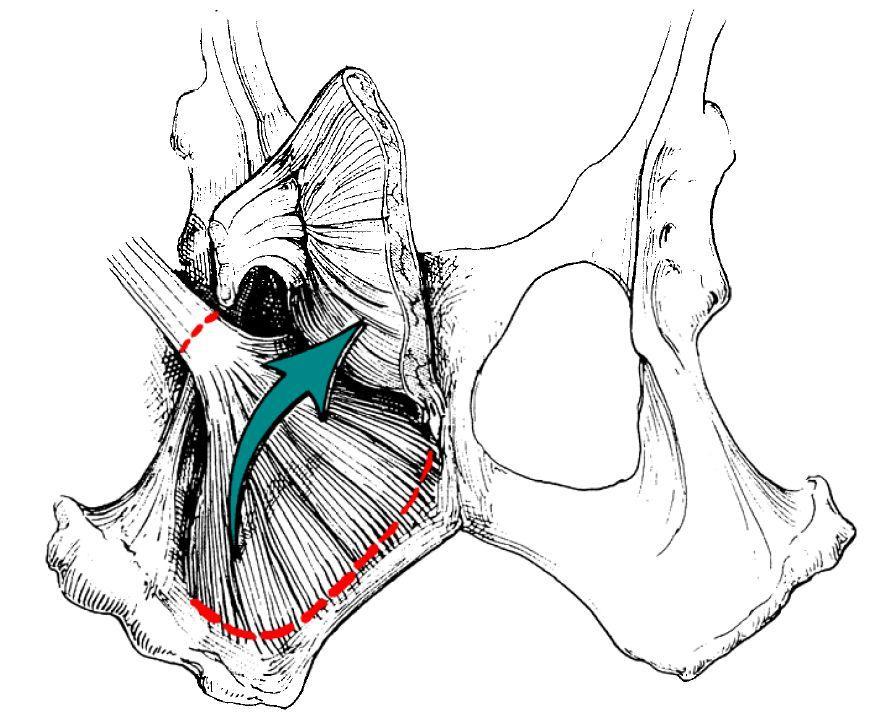 hernies perineales Page 14 Image 0001