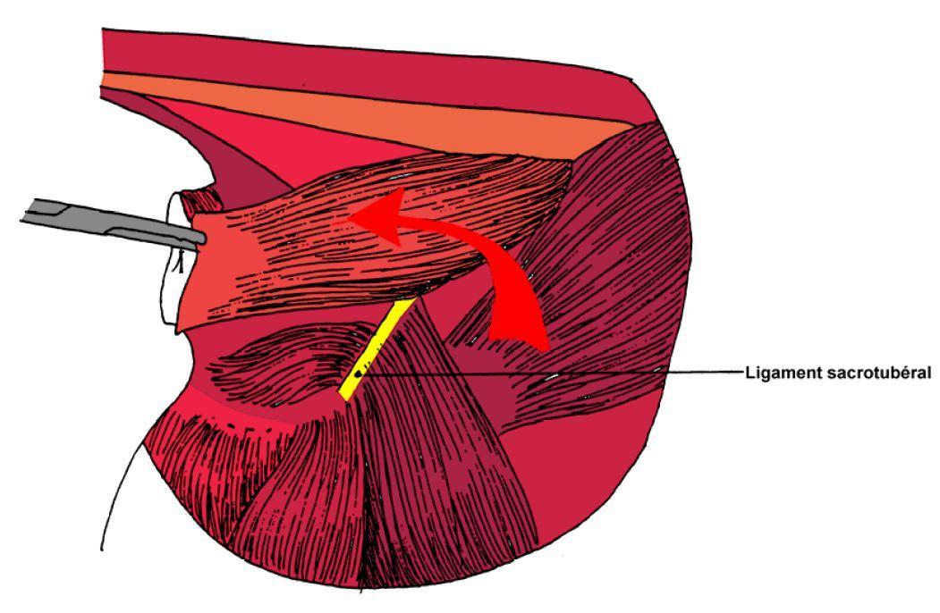 hernies perineales Page 14 Image 0004